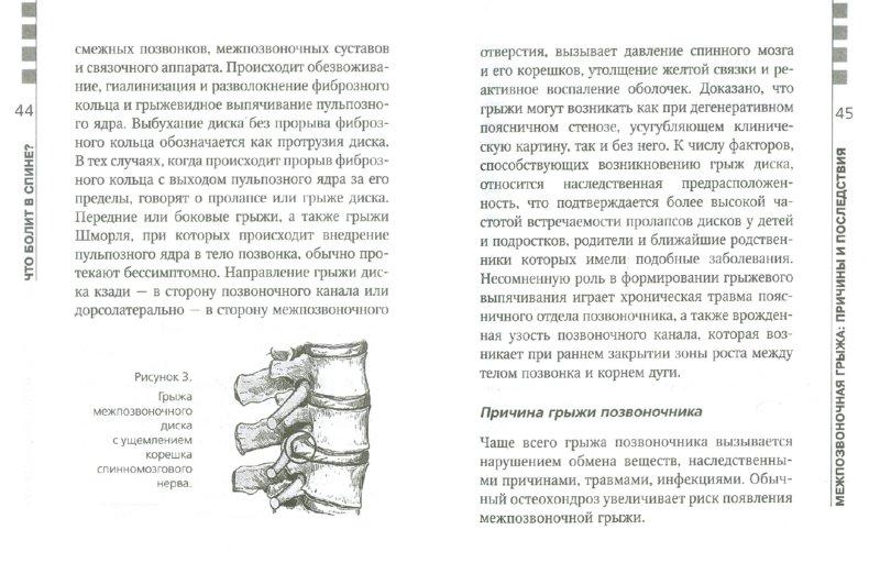 Иллюстрация 1 из 7 для Жизнь без боли в шее - Валентин Дикуль | Лабиринт - книги. Источник: Лабиринт