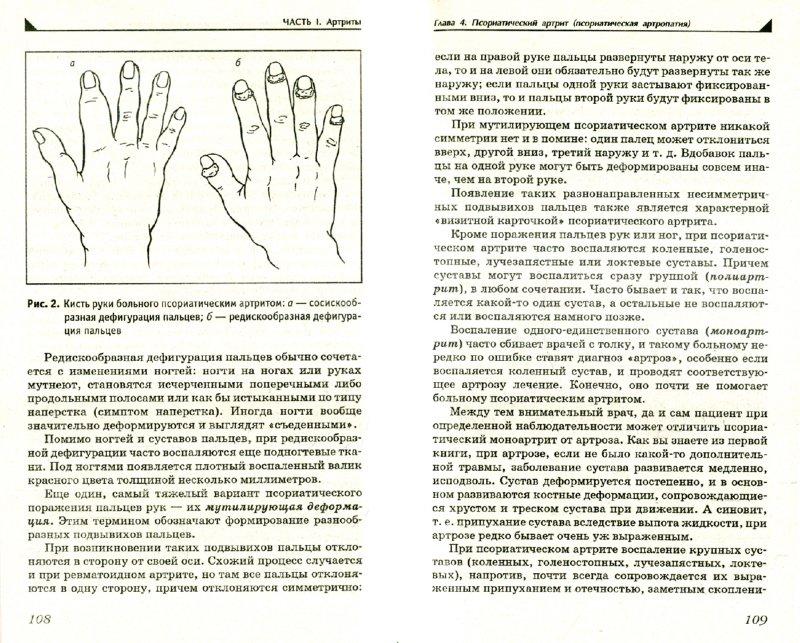 Иллюстрация 1 из 7 для Артрит. Избавляемся от болей в суставах - Павел Евдокименко | Лабиринт - книги. Источник: Лабиринт