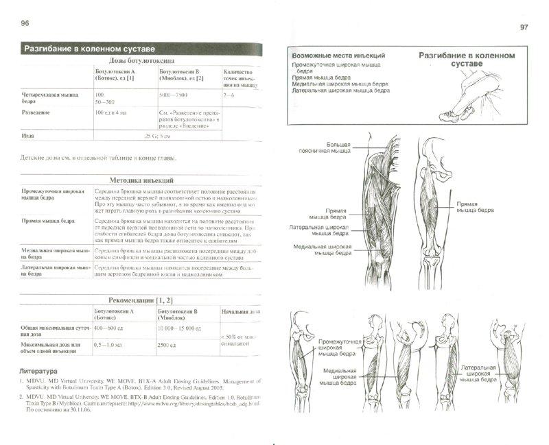 Иллюстрация 1 из 6 для Ботулинотерапия. Карманный справочник - И. Оддерсон | Лабиринт - книги. Источник: Лабиринт