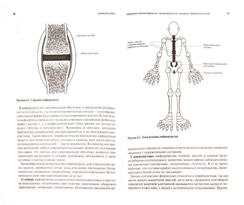 Иллюстрация 1 из 5 для Грамматика артрита - Сторожаков, Лялина | Лабиринт - книги. Источник: Лабиринт