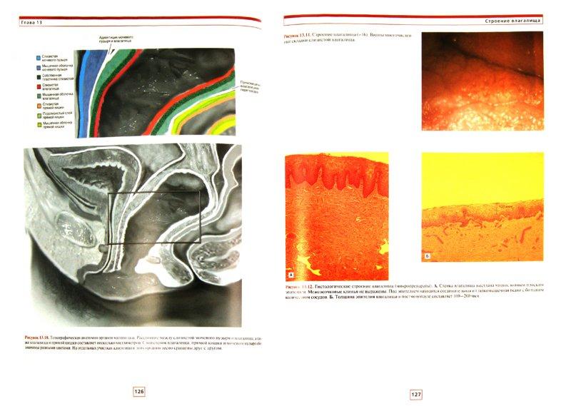 Иллюстрация 1 из 14 для Кольпоскопия. Атлас-справочник - Майкл Баггиш | Лабиринт - книги. Источник: Лабиринт