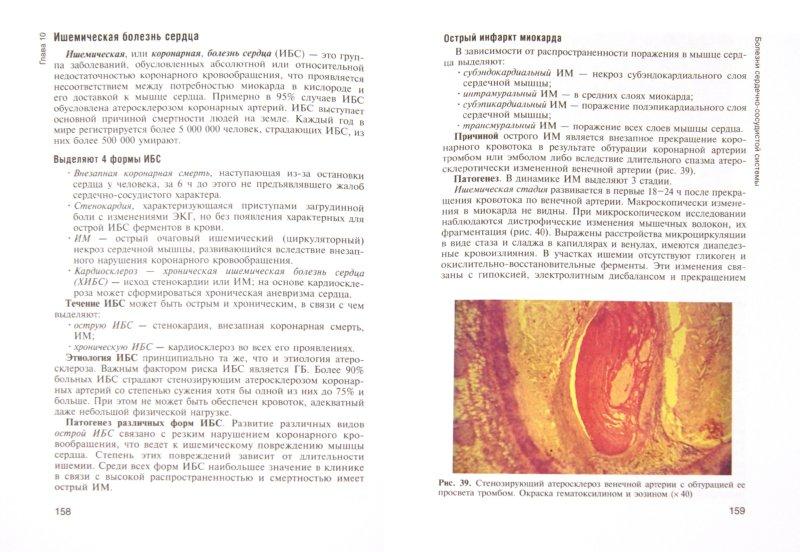 Иллюстрация 1 из 5 для Патологическая анатомия и патологическая физиология. Учебник - Пауков, Литвицкий | Лабиринт - книги. Источник: Лабиринт
