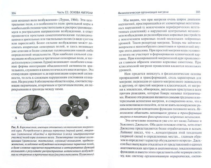 Иллюстрация 1 из 36 для Мигрень - Оливер Сакс | Лабиринт - книги. Источник: Лабиринт