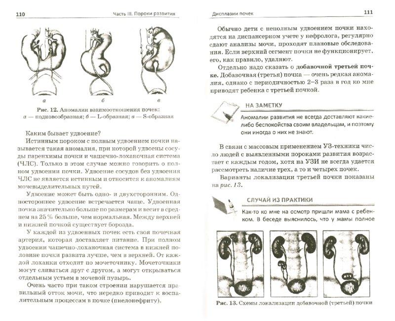 Иллюстрация 1 из 21 для Врожденные болезни почек - Екатерина Черноруцкая | Лабиринт - книги. Источник: Лабиринт