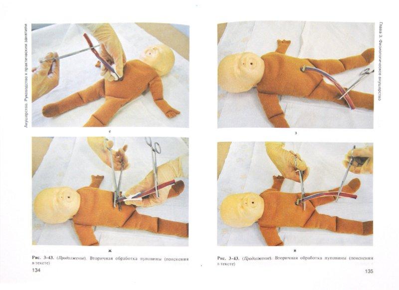 Иллюстрация 1 из 5 для Акушерство. Руководство к практическим занятиям. Учебное пособие - Дзигуа, Скребушевская | Лабиринт - книги. Источник: Лабиринт