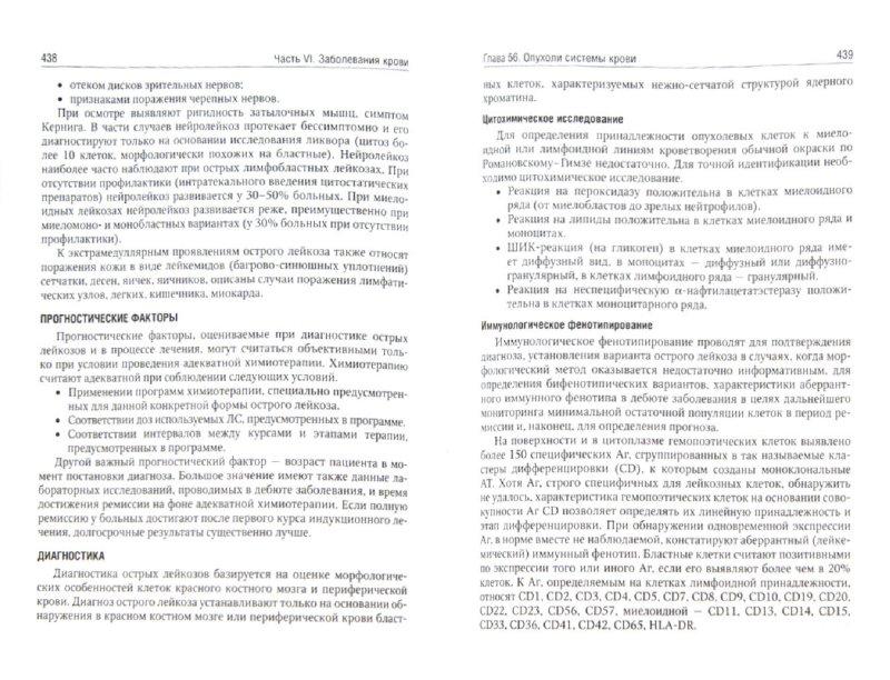 Иллюстрация 1 из 4 для Внутренние болезни. Учебник. В 2-х томах (+CD) | Лабиринт - книги. Источник: Лабиринт