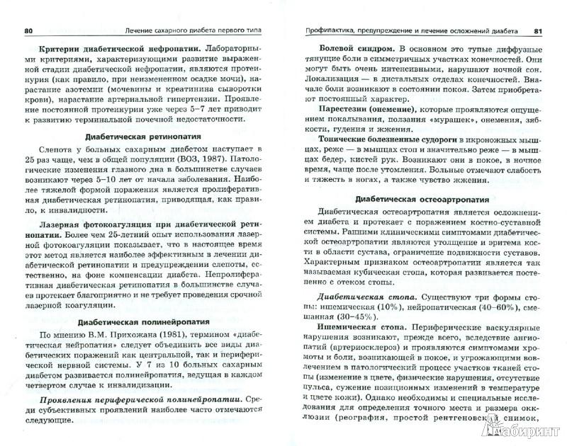 Иллюстрация 1 из 6 для Лечение сахарного диабета первого типа - Юрий Захаров   Лабиринт - книги. Источник: Лабиринт