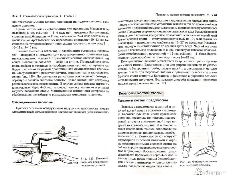 Иллюстрация 1 из 21 для Травматология и ортопедия. Учебник (+СВ) - Котельников, Миронов, Мирошниченко | Лабиринт - книги. Источник: Лабиринт