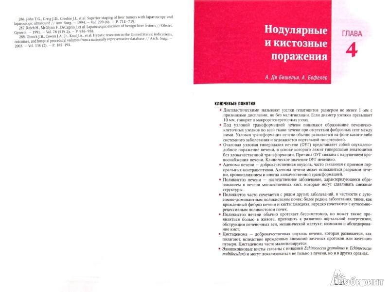 Иллюстрация 1 из 16 для Болезни печени по Шиффу. Сосудистые, опухолевые, инфекционные и гранулематозные заболевания - Шифф, Соррел, Мэддрей | Лабиринт - книги. Источник: Лабиринт