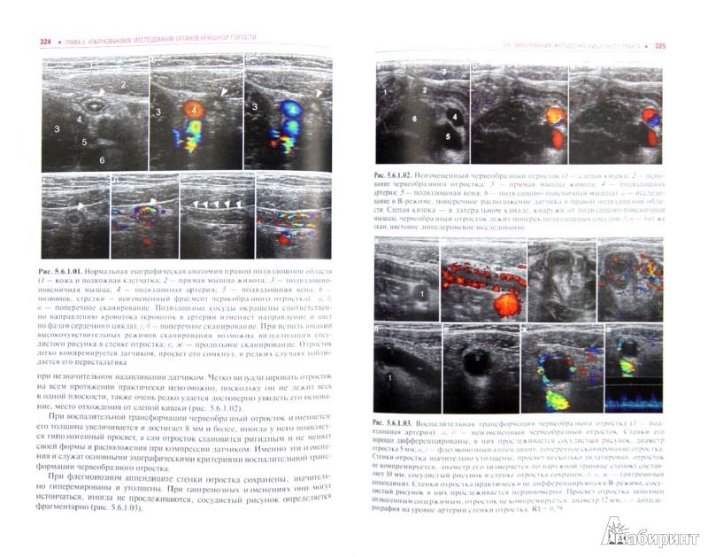 Иллюстрация 1 из 5 для Ультразвуковая диагностика в неотложной детской практике: руководство для врачей - Васильев, Ольхова | Лабиринт - книги. Источник: Лабиринт
