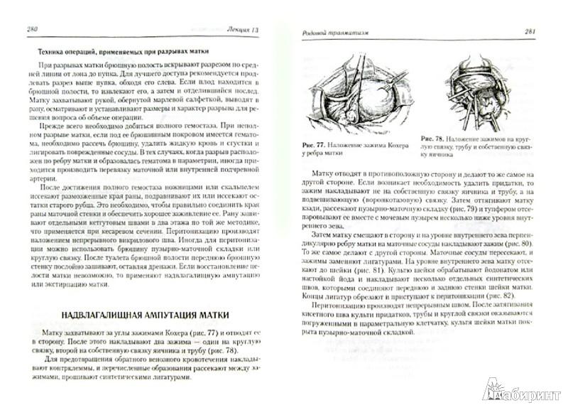 Иллюстрация 1 из 9 для Акушерство. Клинические лекции. Учебное пособие (+CD) - Озолиня, Макаров, Керчелаева | Лабиринт - книги. Источник: Лабиринт