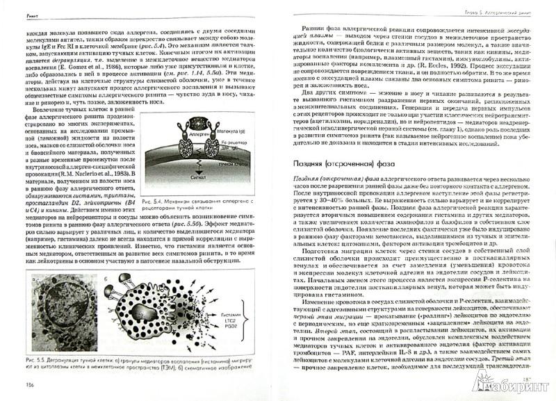 Иллюстрация 1 из 5 для Ринит: руководство для врачей - Андрей Лопатин | Лабиринт - книги. Источник: Лабиринт