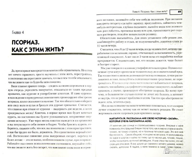Иллюстрация 1 из 11 для Псориаз. Диета, лечение, профилактика - Оксана Салова | Лабиринт - книги. Источник: Лабиринт