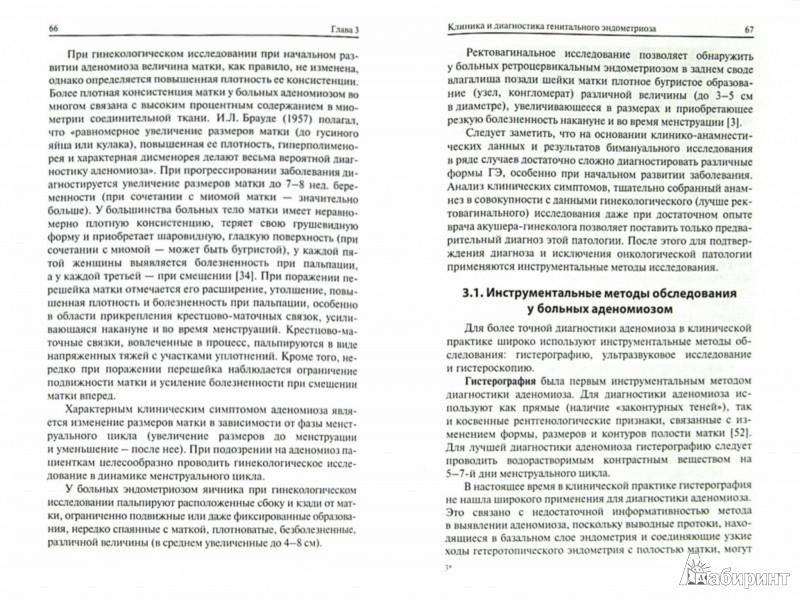 Иллюстрация 1 из 6 для Генитальный эндометриоз: взгляд практикующего врача. Монография - Дамиров, Олейникова, Майорова | Лабиринт - книги. Источник: Лабиринт