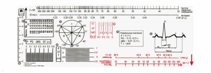 Иллюстрация 1 из 4 для Линейка измерительная электрокардиографическая | Лабиринт - книги. Источник: Лабиринт