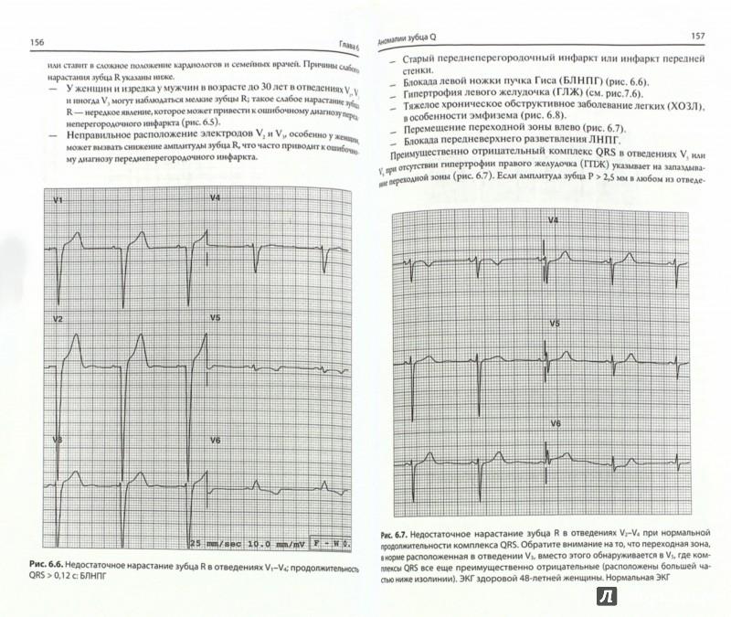 Иллюстрация 1 из 15 для Быстрый анализ ЭКГ - Габриэль Хан | Лабиринт - книги. Источник: Лабиринт