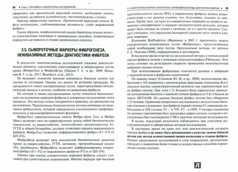 Иллюстрация 1 из 11 для Хронические вирусные гепатиты В, С и D - Еналеева, Созинов, Фазылов | Лабиринт - книги. Источник: Лабиринт