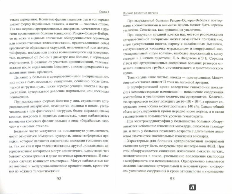 Иллюстрация 1 из 4 для Пороки развития легких в клинической практике - Владимир Гольдштейн | Лабиринт - книги. Источник: Лабиринт