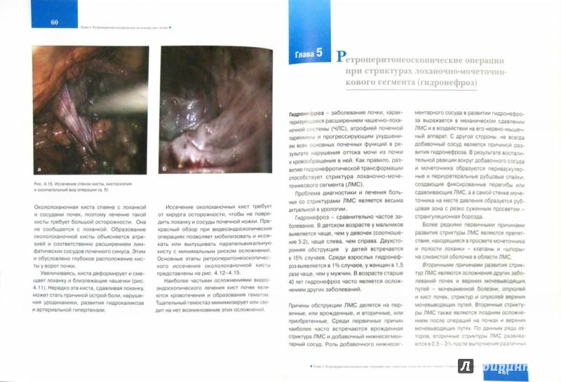 Иллюстрация 1 из 6 для Лапароскопические ретроперитонеальные операции в урологии - Зиератшо Кадыров | Лабиринт - книги. Источник: Лабиринт