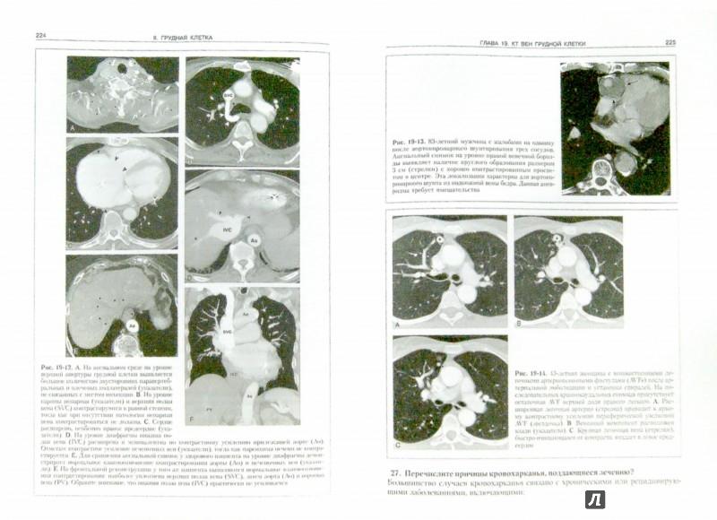 Иллюстрация 1 из 12 для Секреты компьютерной томографии. Грудная клетка, живот, таз - Стрэнг, Догра | Лабиринт - книги. Источник: Лабиринт
