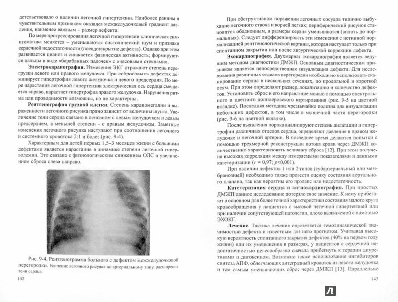 Иллюстрация 1 из 10 для Врожденные пороки сердца. Руководство для педиатров, кардиологов, неонатологов - Александр Шарыкин | Лабиринт - книги. Источник: Лабиринт