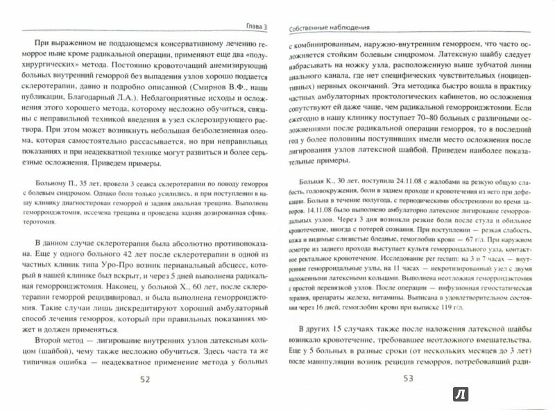 Иллюстрация 1 из 2 для Опасности, осложнения и ошибки в проктологии - Ан, Ривкин, Соломка | Лабиринт - книги. Источник: Лабиринт