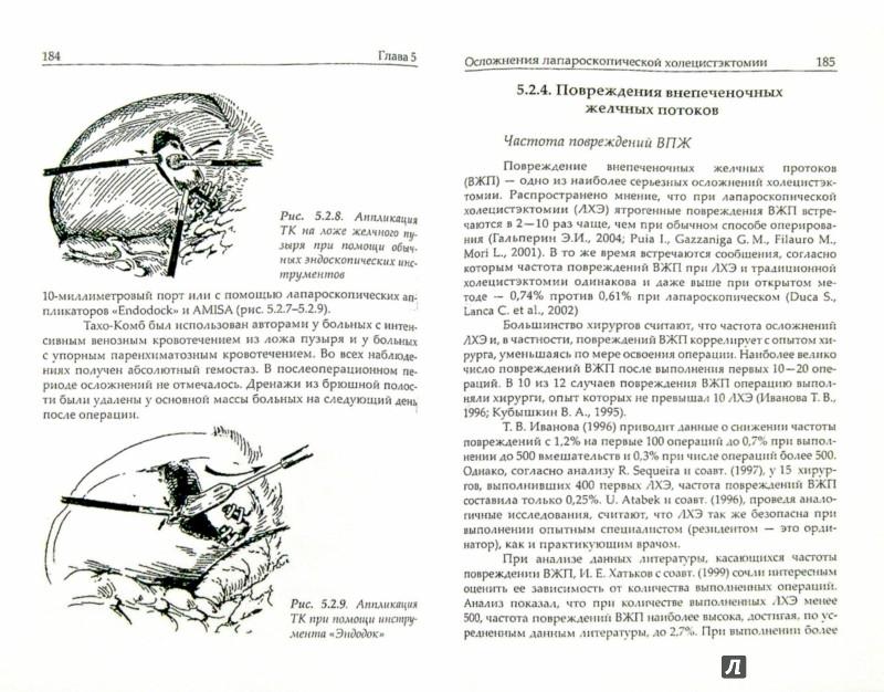 Иллюстрация 1 из 5 для Эндоскопическая хирургия желчнокаменной болезни (Руководство для врачей) - Гарелик, Жандаров, Мармыш | Лабиринт - книги. Источник: Лабиринт