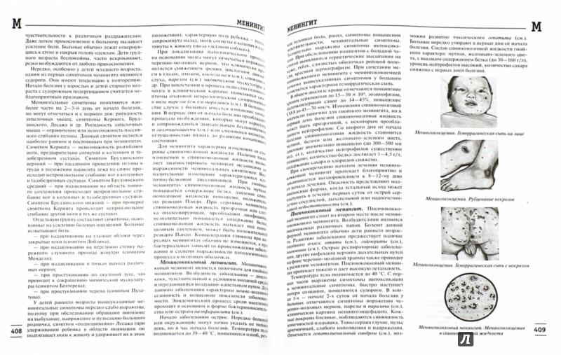Иллюстрация 1 из 7 для Популярная медицинская энциклопедия. Более 1000 самых распространенных заболеваний, патологий - Елисеев, Шилов, Гитун, Гладенин | Лабиринт - книги. Источник: Лабиринт