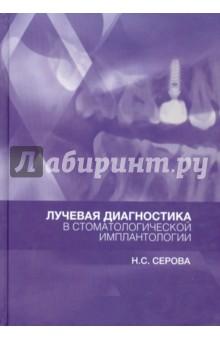 Лучевая диагностика в стоматологической имплантологии. Атлас