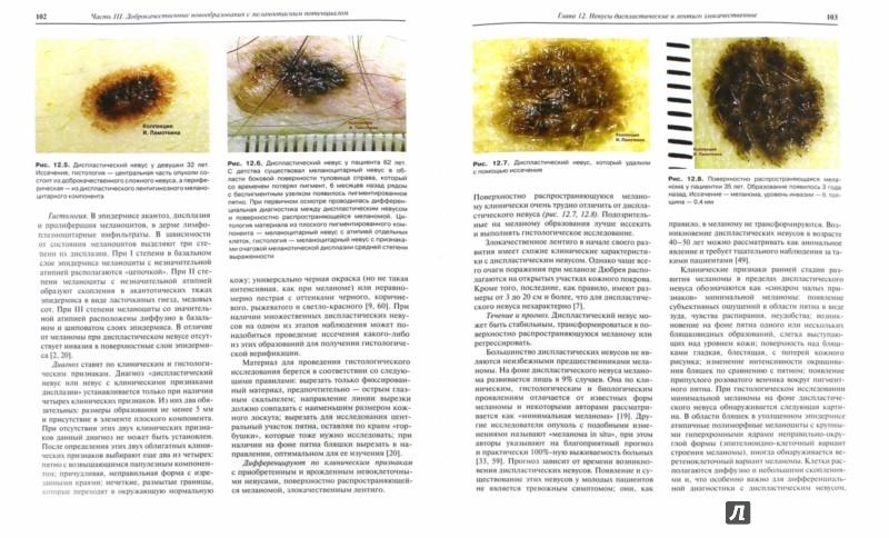 Иллюстрация 1 из 4 для Меланоцитарные и меланиновые поражения кожи. Учебное пособие - Игорь Ламоткин | Лабиринт - книги. Источник: Лабиринт