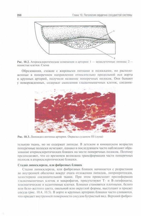Иллюстрация 1 из 26 для Патологическая анатомия. Учебник. В 2-х томах. Том 1. Общая патология - Пауков, Коган, Салтыков | Лабиринт - книги. Источник: Лабиринт