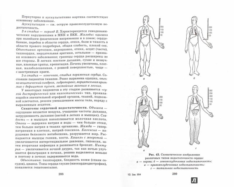 Иллюстрация 1 из 3 для Терапия с курсом первичной медико-санитарной помощи - Смолева, Аподиакос | Лабиринт - книги. Источник: Лабиринт