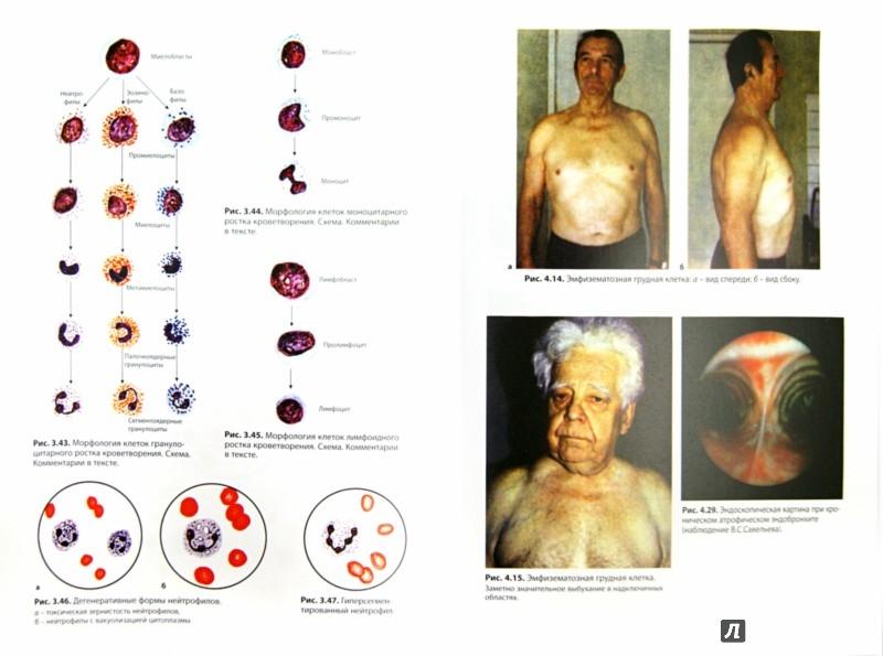 Иллюстрация 1 из 23 для Внутренние болезни. Система органов дыхания - Ройтберг, Струтынский | Лабиринт - книги. Источник: Лабиринт
