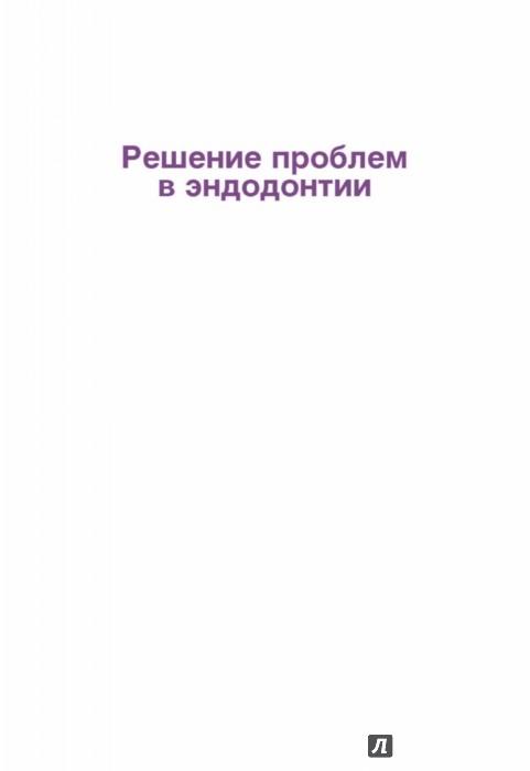 Иллюстрация 1 из 32 для Решение проблем в эндодонтии. Профилактика, диагностика и лечение - Гуиман, Думша, Ловдэл | Лабиринт - книги. Источник: Лабиринт