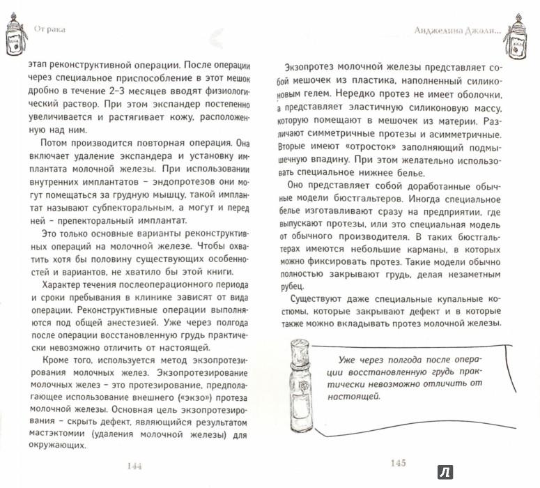 Иллюстрация 1 из 9 для От рака - Светлана Кузина | Лабиринт - книги. Источник: Лабиринт