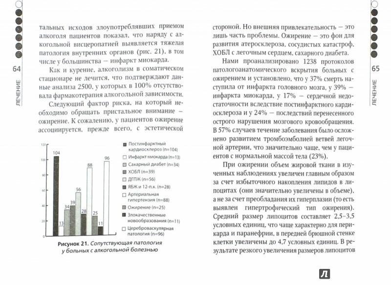 Иллюстрация 1 из 11 для Постинфарктный кардиосклероз - Аркадий Верткин | Лабиринт - книги. Источник: Лабиринт