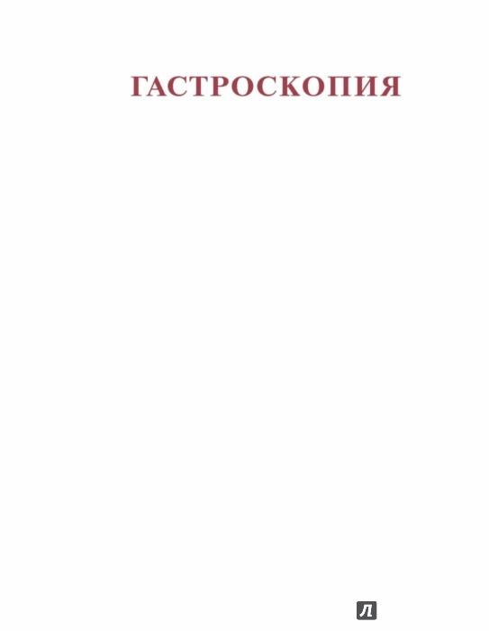 Иллюстрация 1 из 21 для Гастроскопия - Блок, Шахшаль, Шмидт | Лабиринт - книги. Источник: Лабиринт
