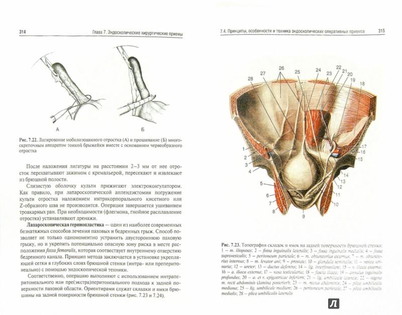 Иллюстрация 1 из 6 для Оперативная хирургия. Учебное пособие по мануальным навыкам (+2CD) - Воробьев, Каган, Дыдыкин | Лабиринт - книги. Источник: Лабиринт
