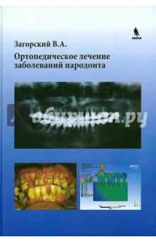 Ортопедическое лечение заболеваний пародонта