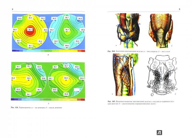 Иллюстрация 1 из 10 для Хирургические болезни. Учебник в 2-х томах. Том 1 - Мерзликин, Бражникова, Альперович, Цхай | Лабиринт - книги. Источник: Лабиринт