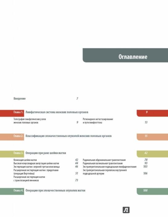 Иллюстрация 1 из 25 для Операции при злокачественных опухолях женских половых органов - Каприн, Новикова, Антипов | Лабиринт - книги. Источник: Лабиринт