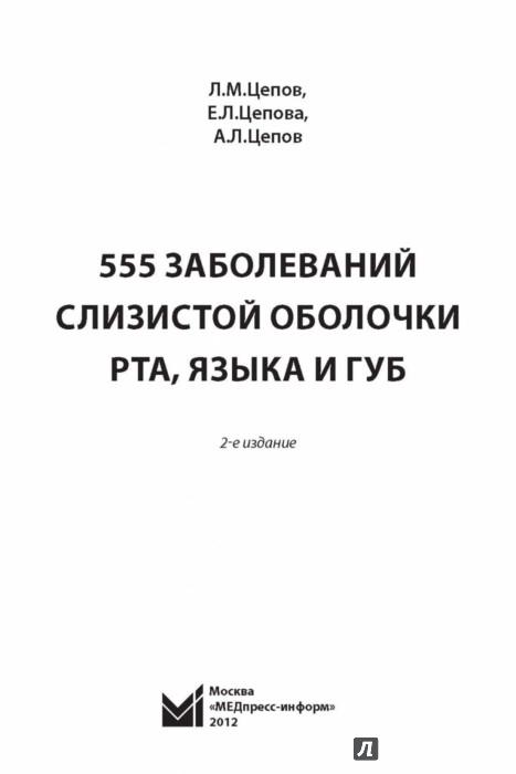 Иллюстрация 1 из 33 для 555 заболеваний слизистой оболочки рта, языка и губ - Цепов, Цепова, Цепов | Лабиринт - книги. Источник: Лабиринт