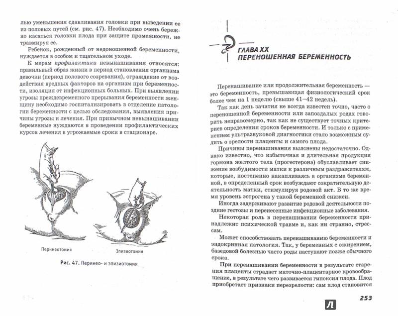 Иллюстрация 1 из 9 для Акушерство и гинекология. Учебник - Изабелла Славянова | Лабиринт - книги. Источник: Лабиринт