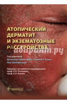 Атопический дерматит и экзематозные расстройства под редакцией к кейта стоуна роджера л хамфриза неотложная помощь современные аспекты