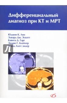 Дифференциальный диагноз при КТ и МРТ
