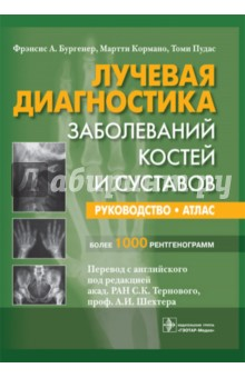 Лучевая диагностика заболеваний костей и суставов людмила глазун елена полухина ультразвуковая диагностика заболеваний почек
