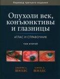 Опухоли век, конъюнктивы и глазницы. Атлас и справочник. В 2-х томах. Том 2