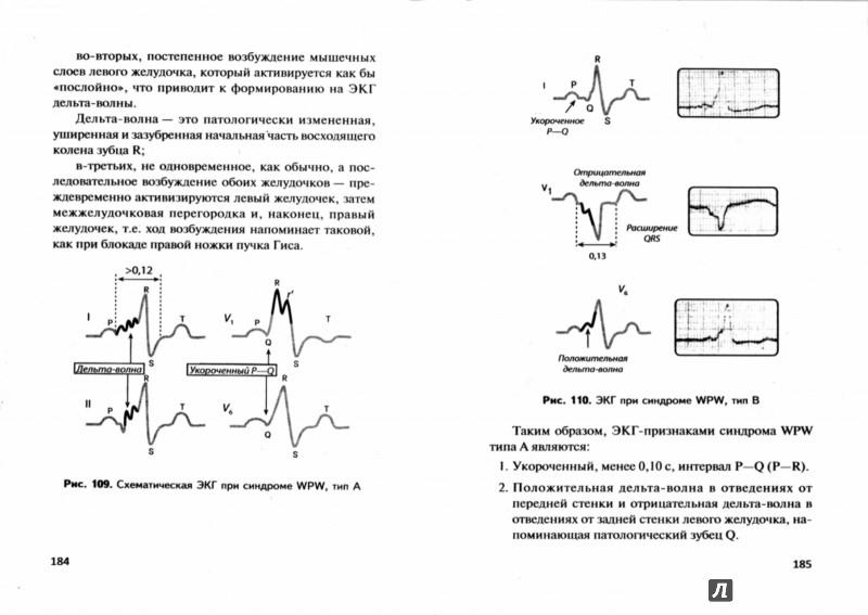 Иллюстрация 1 из 8 для Азбука ЭКГ и Боли в сердце - Юрий Зудбинов | Лабиринт - книги. Источник: Лабиринт