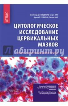 Цитологические исследование цервикальных мазков. Атлас опухоли тела и шейки матки морфологическая диагностика и генетика практическое руководство