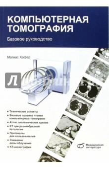 Компьютерная томография. Базовое руководство - Матиас Хофер